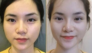Thẩm mỹ cắt mí mắt an toàn, không đau đẹp chuẩn Hàn Quốc