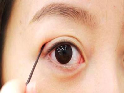 Cắt mắt 2 mí