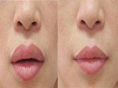 Làm mỏng môi dày hay phẫu thuật thu gọn môi