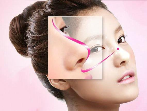 Nâng cao sống mũi (Nasal augmentation)