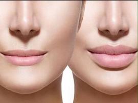 Làm đầy môi mỏng (Lip Augmentation, Lip Enhancement)