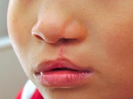 Phẫu thuật tạo hình khe hở môi (Sứt môi)